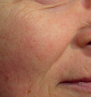 red-sensitive-rosacea-skin-after