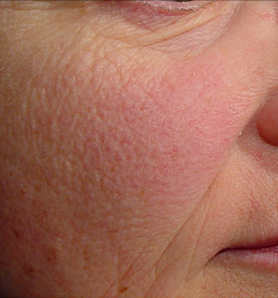 red-sensitive-rosacea-skin-before